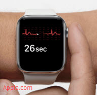 Apple Watch ECG EKG